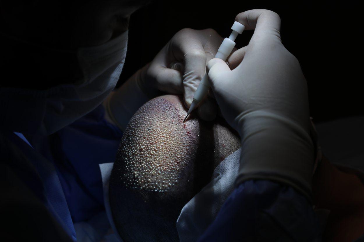Implantadora choi