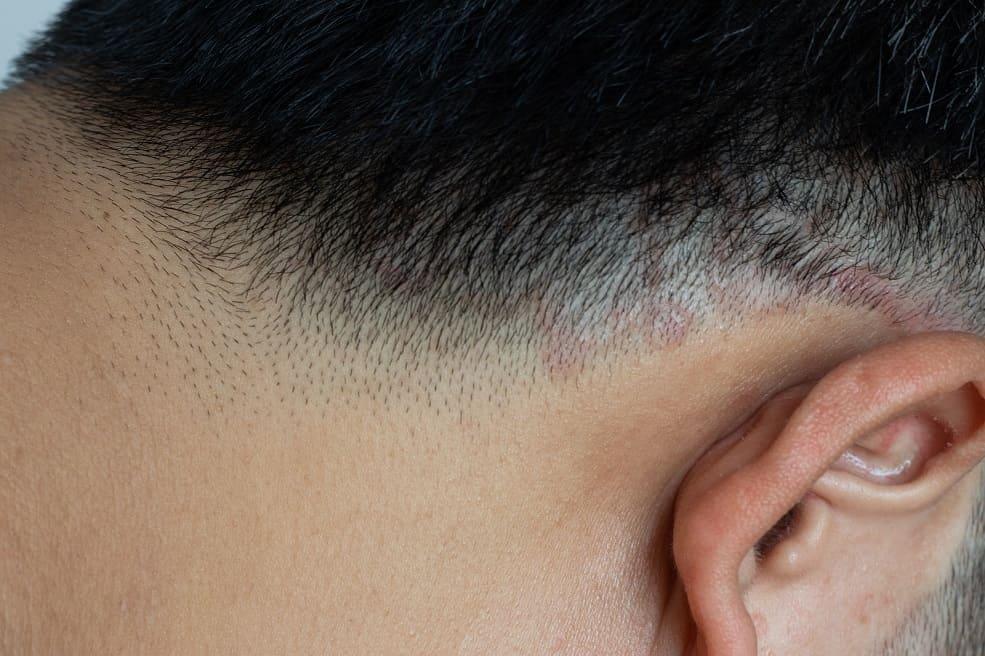 como prevenir la tiña del cuero cabelludo