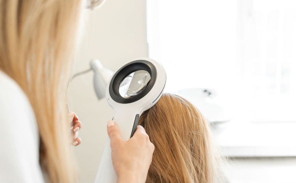 Diagnóstico de la alopecia fibrosante con dermatoscopia