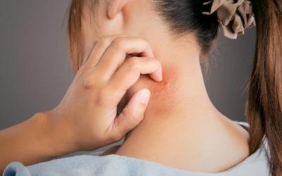 Mujer rascándose por dermatitis en el pelo