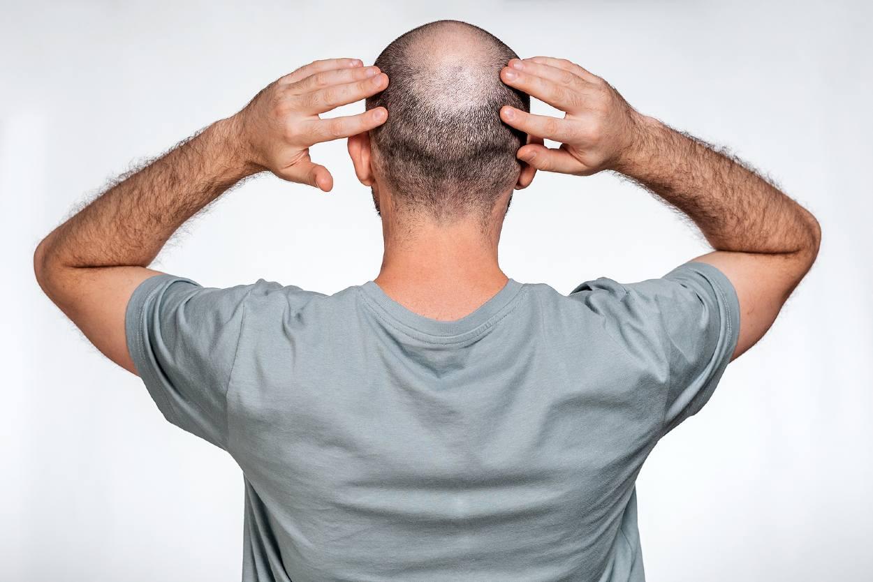 Hombre de espaldas con una zona donante de injerto capilar pobre