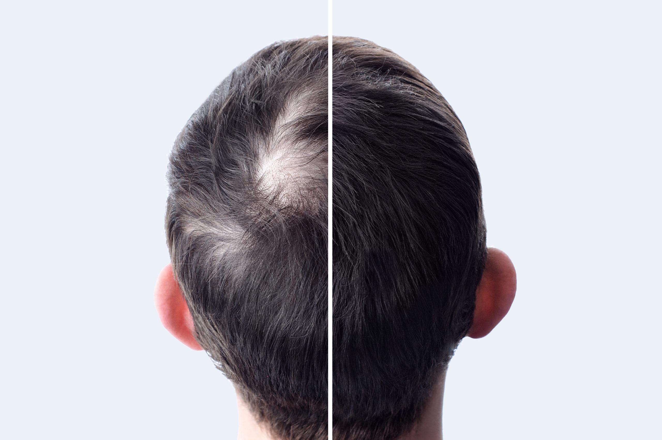 Antes y después del injerto capilar para ganar densidad capilar