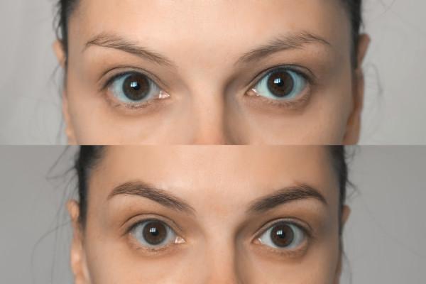 Imagen de una chica antes y después de un implante de cejas