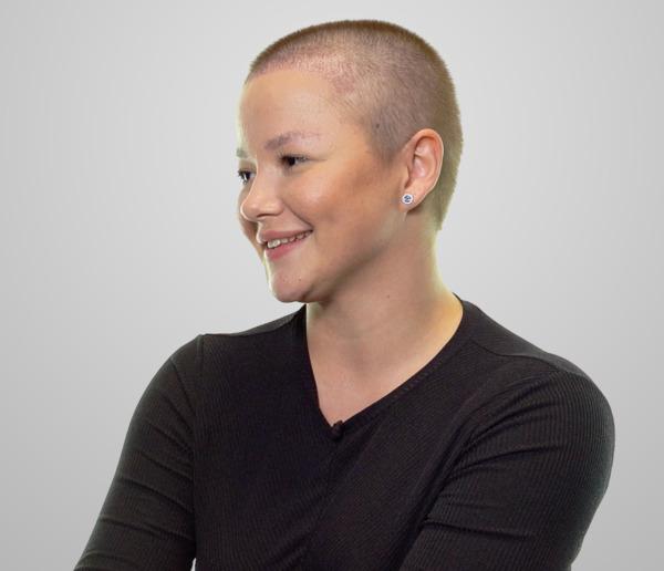 Detalle del resultado del  implante de cejas en una mujer joven.