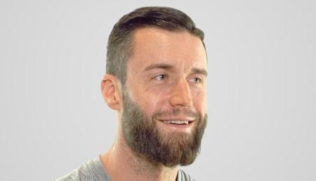 Hombre sonríe tras un implante de barba en Elithair