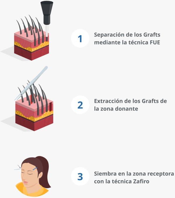 Infografía explicativa del proceso de implante de cejas en Elithair