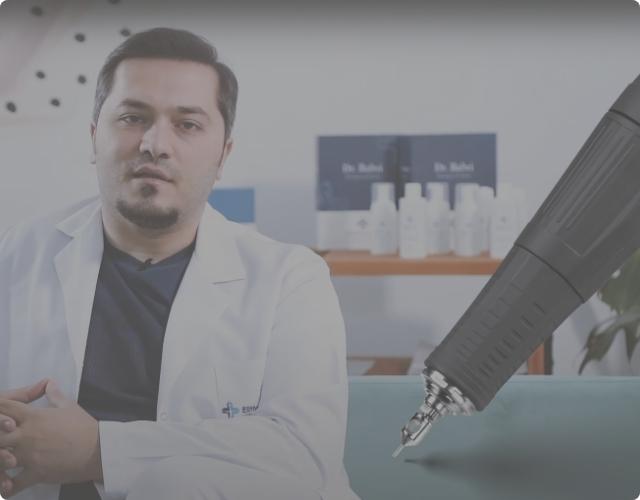 El Dr. Balwi explica la técnica de trasplante capilar FUE