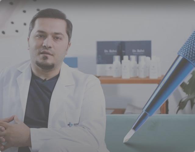 El Dr. Balwi explica la técnica de trasplante capilar Zafiro