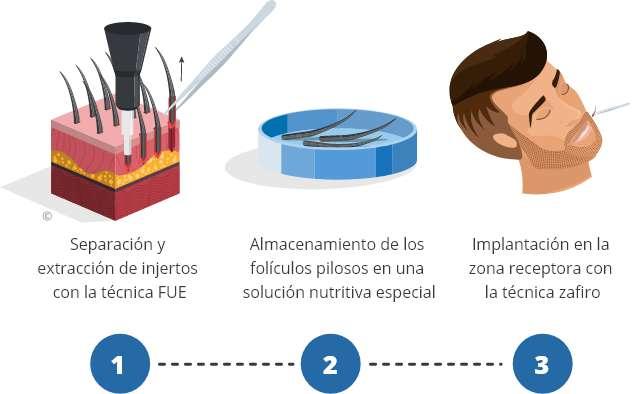 Infografía del procedimiento de un implante de barba en Elithair