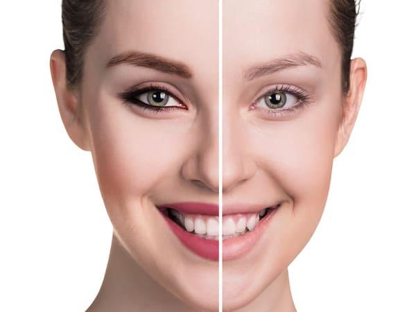 Imagen del resultado antes y después de un implante de cejas en Elithair