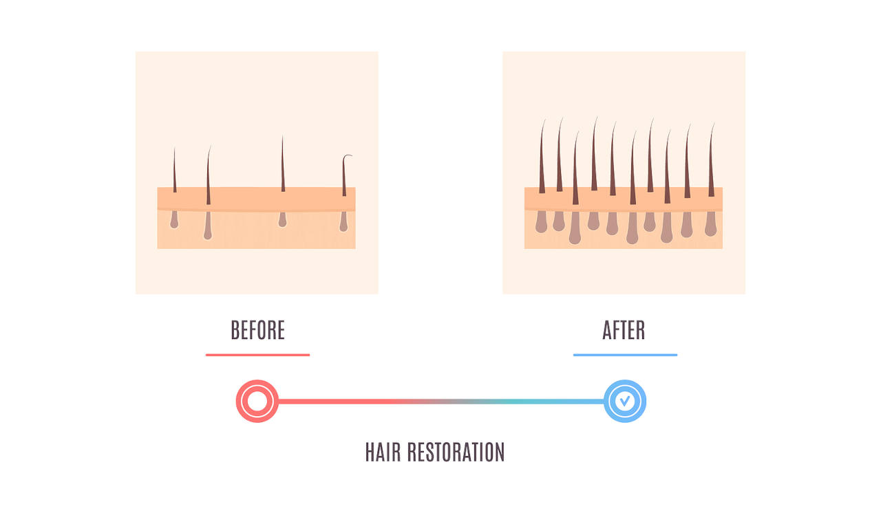 are dermarollers really usefull for hair restoration