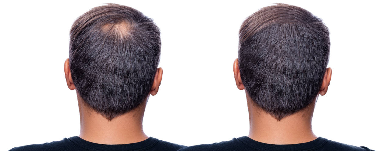 what are the solutions to grow hair back