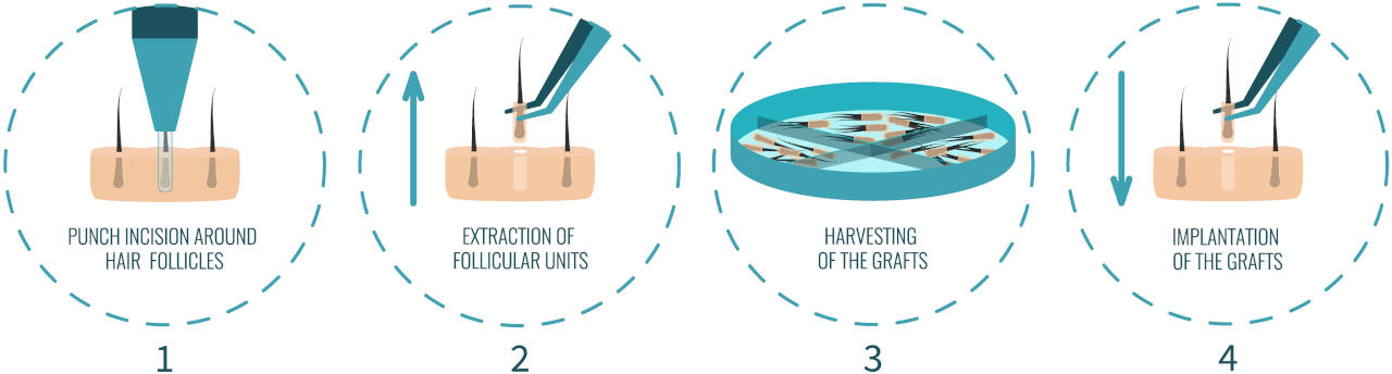 An FUE hair transplant is an effective solution to hair loss
