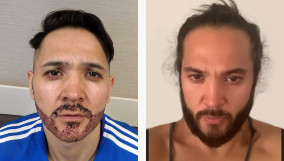 Comparing the before and after of a beard transplant