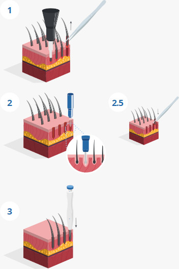 The steps of the SDHI hair transplant