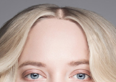 Woman with a high forehead before a hair transplant