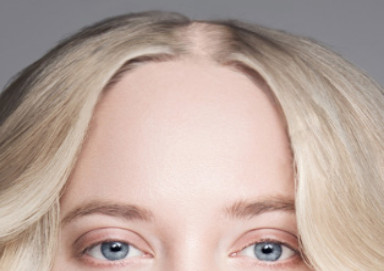 Woman with diffuse hair loss along her parting