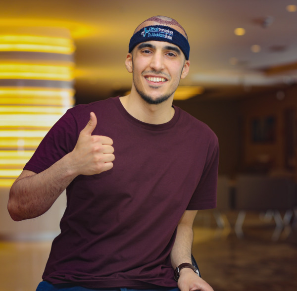 Young man in post-hair transplant healing phase gives thumbs up
