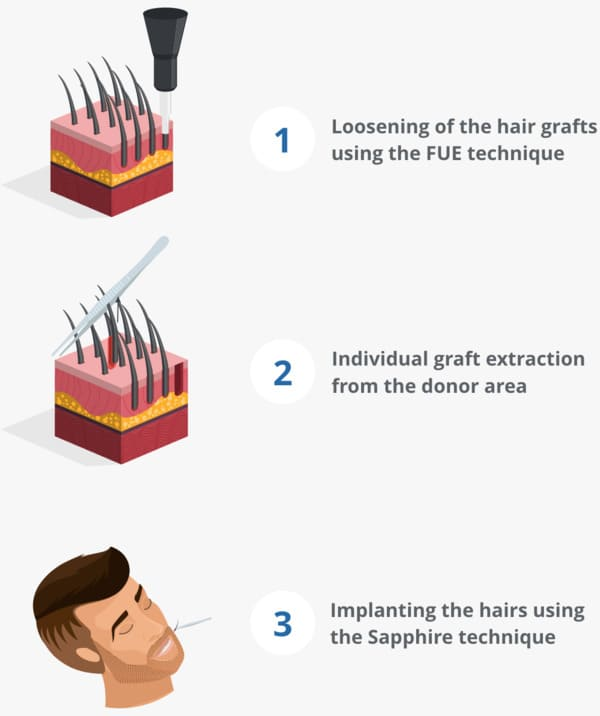 Infographic showing the beard transplant process