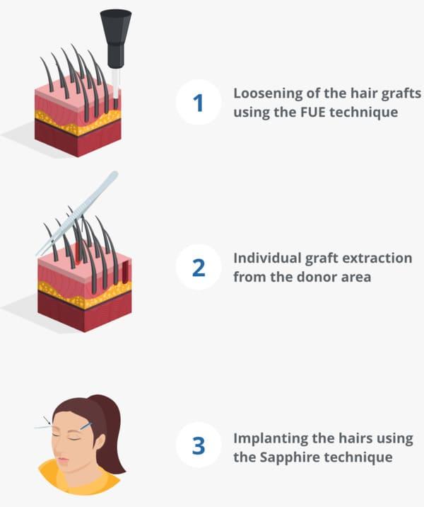 An infographic explaining the eyebrow transplant procedure