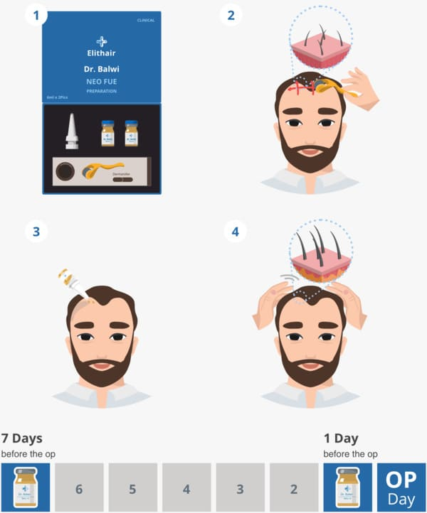 The stages of application of neo fue