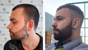 what does a beard transplant look like after