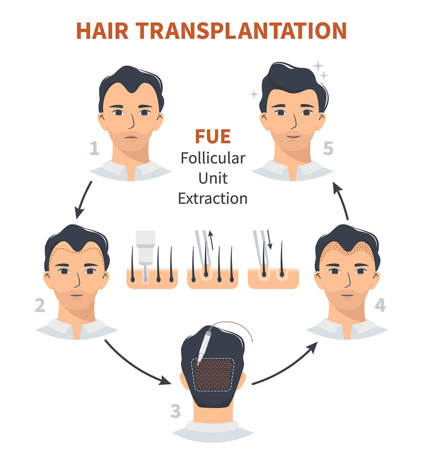 An infographic showing the FUE hair transplant process