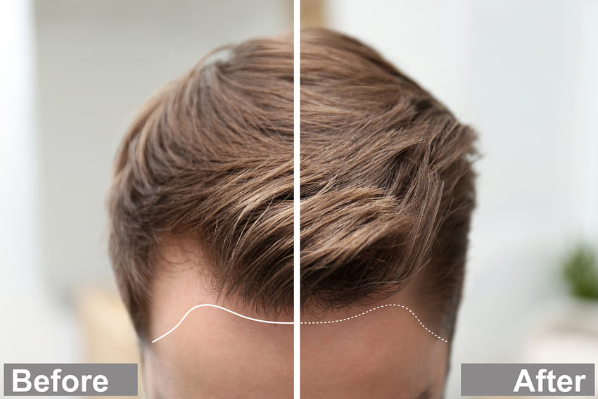 Before and after a successful hair transplant