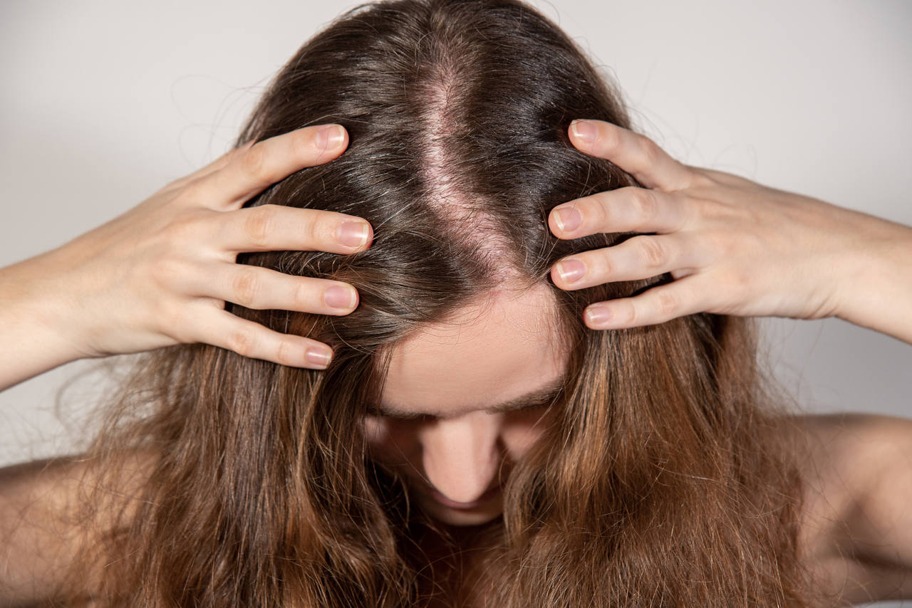 discover the causes and treatments for hair loss in women