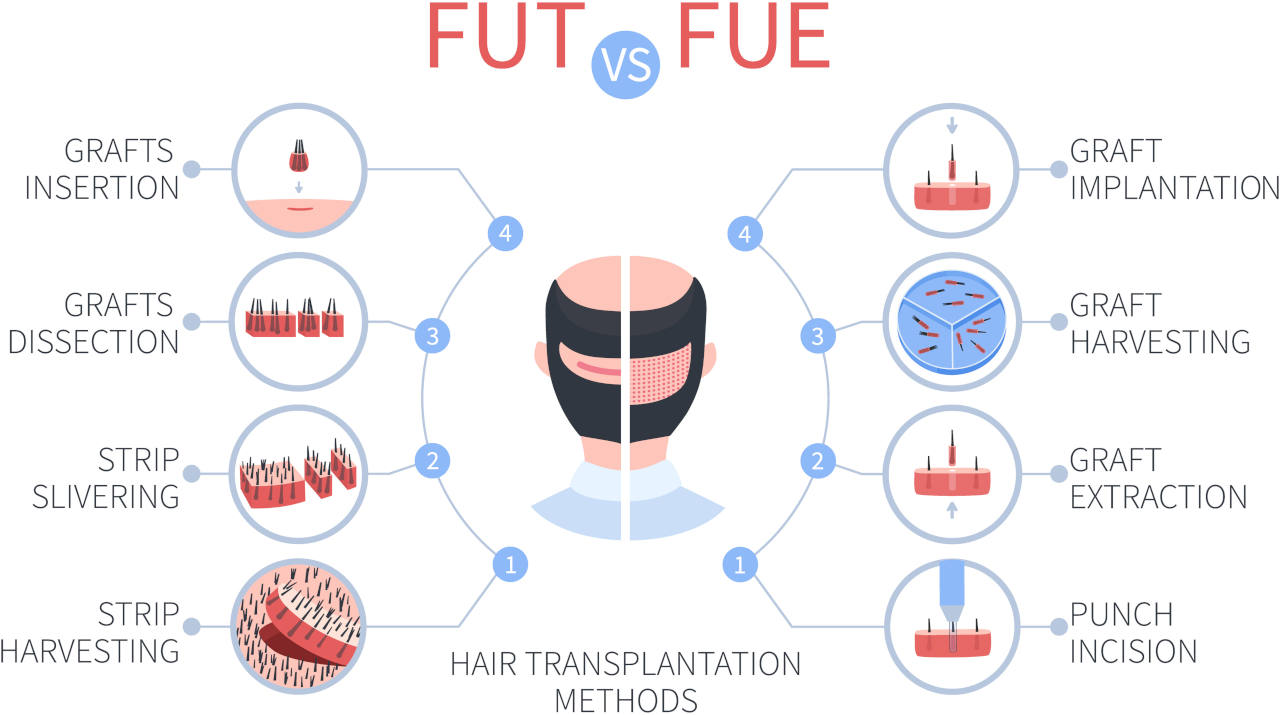 An illustration showing the difference between a good hair transplant as the FUE and the older FUT